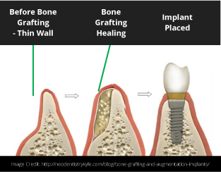 SHD pillar page CON JULY 18 Everything you need to know about Dental Implants in Puyallup, Washington V2-05